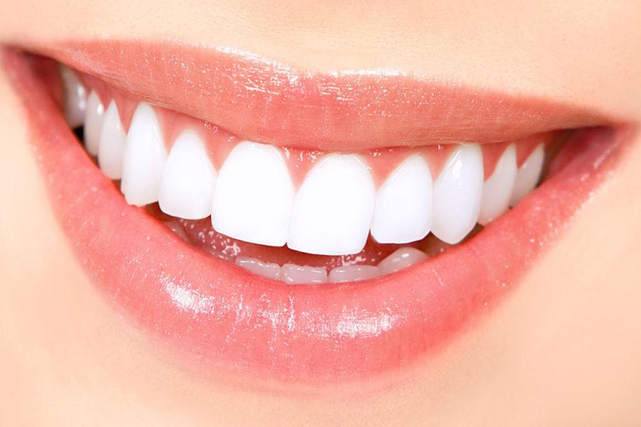 Clínica Dental Fayos tratamientos para mejorar la sonrisa y autoestima