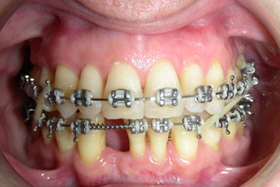 Paciente periodontal. Clase II apiñamiento y mordida cruzada posterior