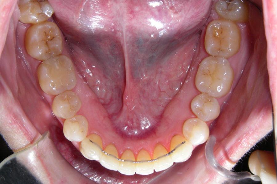 Ortodoncia invisible (Invisalign). Clase I y apiñamiento