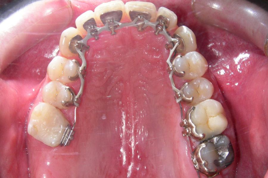 Ortodoncia lingual. Clase I y mordida cruzada canino inferior derecho