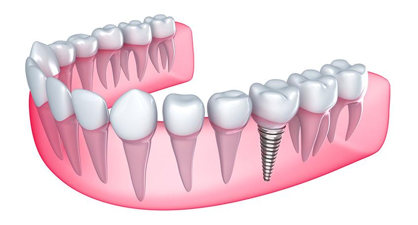 Expertos en implantes dentales en Xàtiva