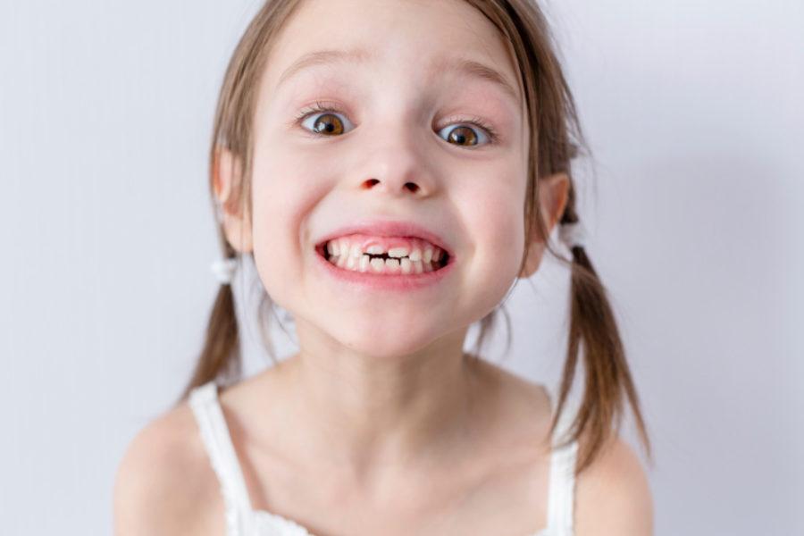 Tipos de Ortodoncia Infantil. Odontopediatría.