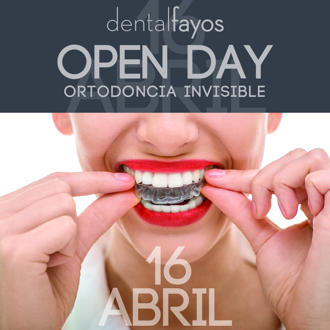 Te invitamos a nuestro Open Day de Ortodoncia Invisible
