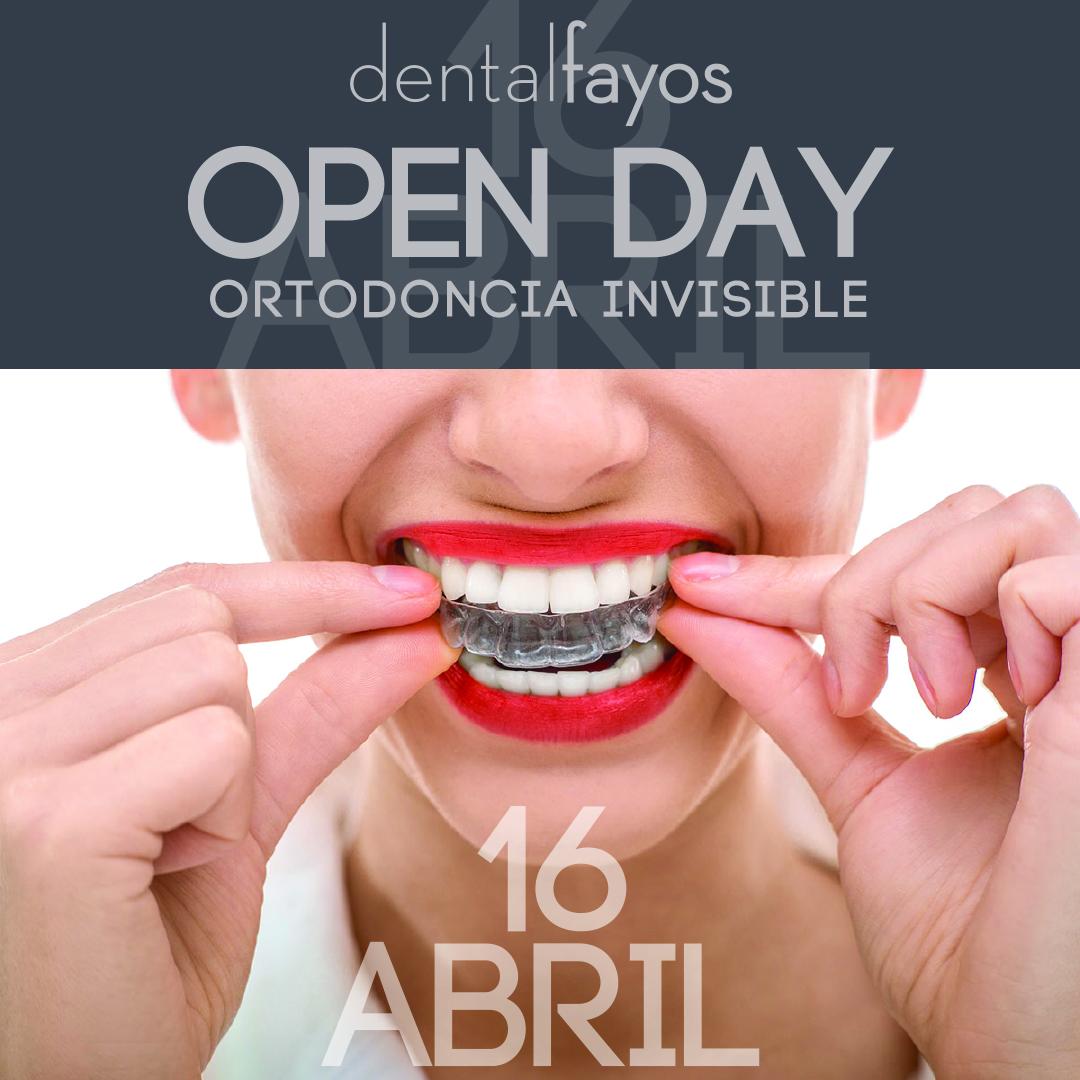 Te invitamos a nuestro Open Day de Ortodoncia Invisible