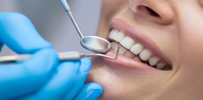 ¿Conoces las diferencias entre limpieza bucal y blanqueamiento dental?